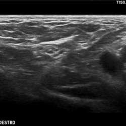 ecografia_muscolo_tendinea_asti